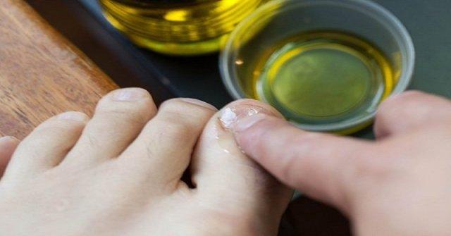 как избавиться от грибка ногтей быстро
