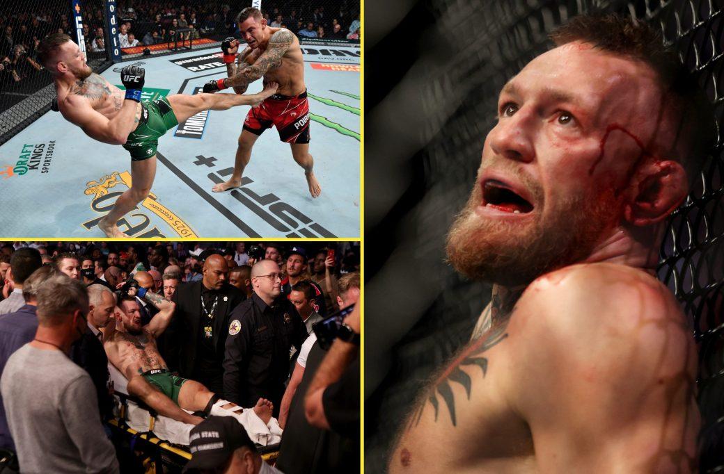 McGregor suffered a bad leg break in his last fight against Dustin Poirier