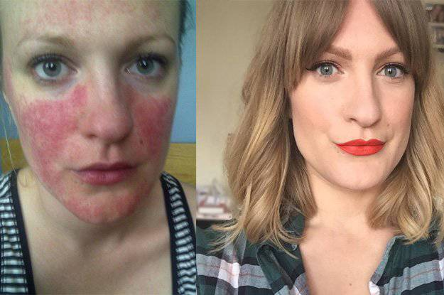 My rosacea story