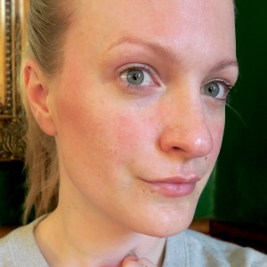 Friday Faves: The after-effects of this rosacea-friendly facial peel. I'm in love!