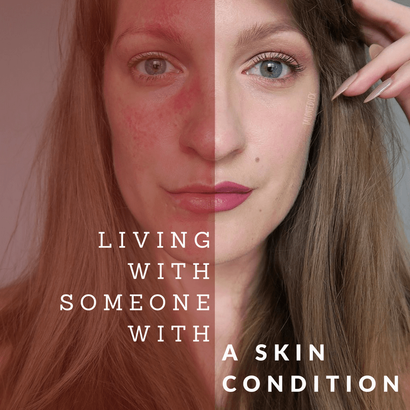 Living with someone with a skin condition: tips and advice about rosacea