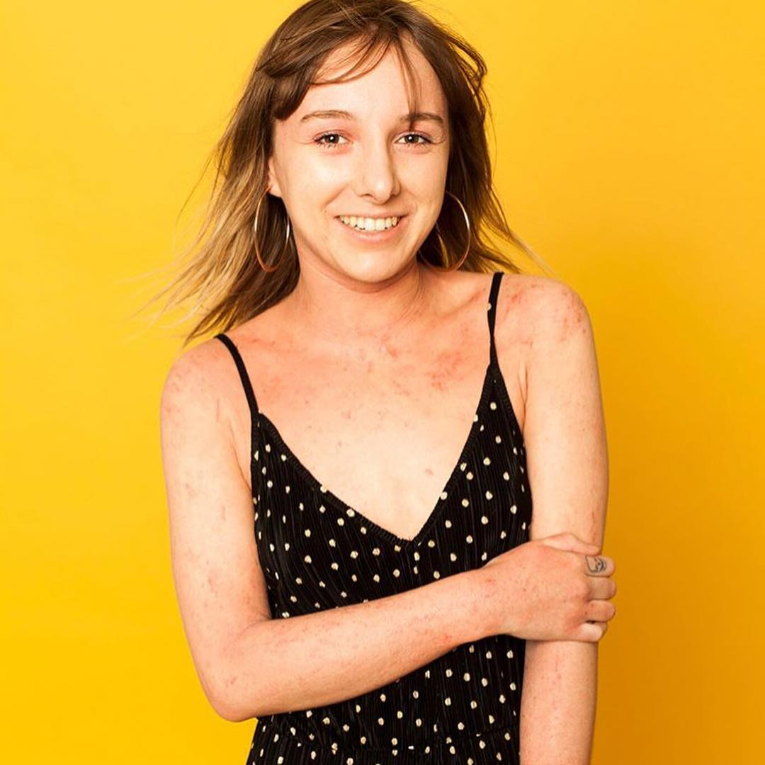 An interview about living with eczema. We chat skin positivity, eczema in the media, and the impact of skin conditions on mental health. Amara shares her eczema tips and advice. #talontedlex #eczematips #eczemaadvice