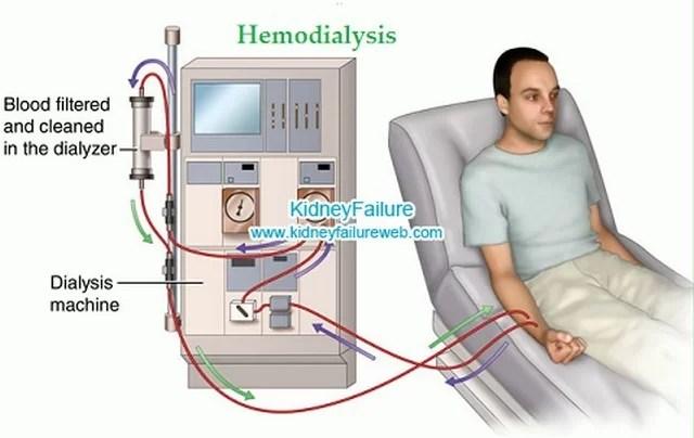 kidney failure DIALYSIS