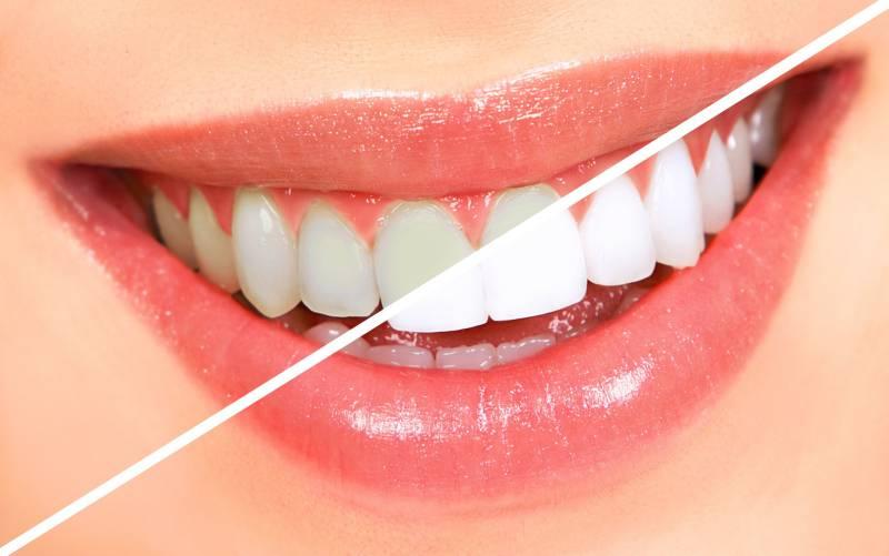 4teeth-whitening