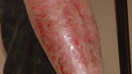 A 44-year-old man with chronic plaque psoriasis located at both lower extremities – successful first-line therapy by Tangs herbal  treatment