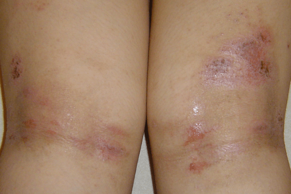 A 13-year-old girl with non-stop itching and oozing erosions and scars remained on arms and legs 湿疹
