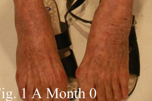 A 73-year-old woman with 4 months of pruritic eczematous skin received clearance with tangs medication in 7 months