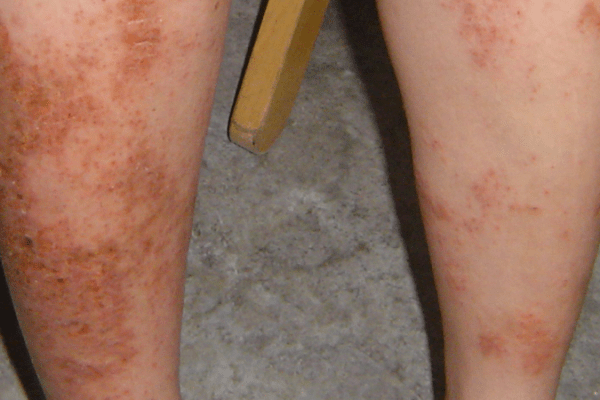 A 40-year-old woman with severe itch and crusted rashes resistant to steroid, cyclosporine 类固醇、环孢霉素治疗无效的顽固湿疹