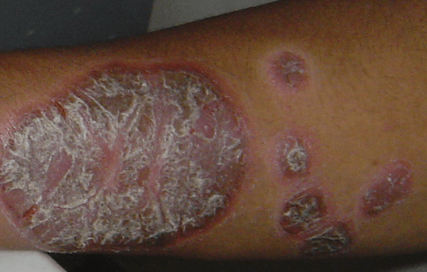 A 35-year-old man with 7 years of thick whitish scale on reddish plaque 银屑病