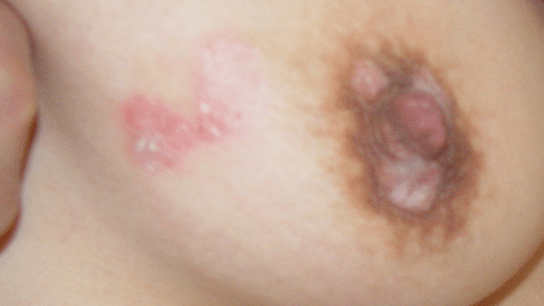 A 34-year-old woman with reddish papule covered silvery scales on right breast and areola area