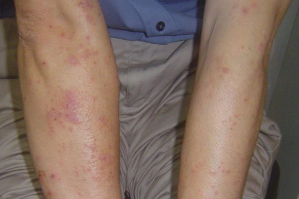 Eczema Testimony from 35-yr-old male Singaporean