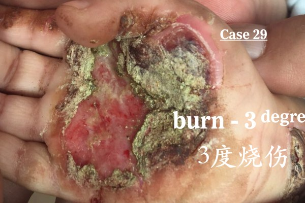 Management of 3rd-degree Burns 三度烧烫伤的治疗