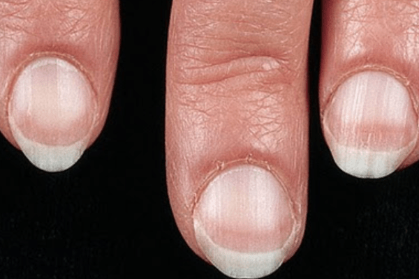 Nail Signs Apparent Leukonychia 表相白甲