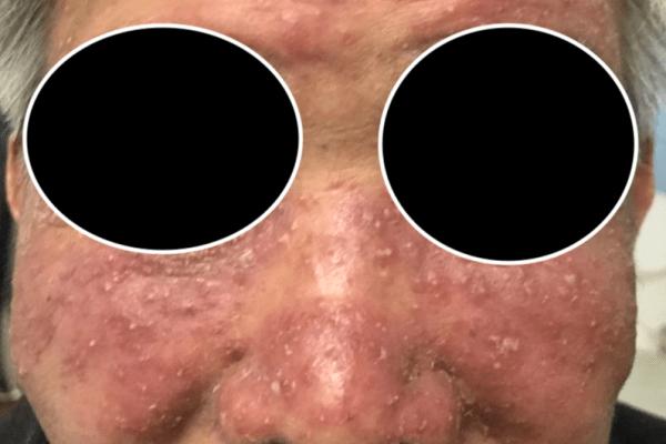Lupus Miliaris Disseminatus Faciei 颜面粟粒性播散性狼疮