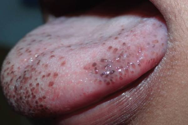Pigmented Fungiform Papillae on the Tongue 舌上色素沉着的真菌状乳头状突起