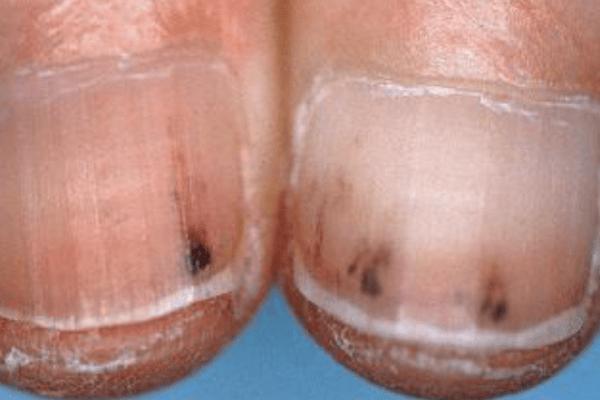 Nail Signs Splinter Haemorrhages 指甲裂片形出血