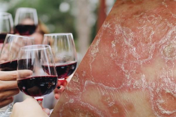 How Alcohol Affect Psoriasis?为什么喝酒会加重银屑病(牛皮癣)?