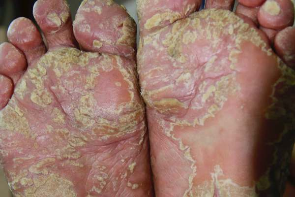 A 60-Year-Old Man with Severe Hyperkeratotic Palmoplantar Eczema 掌跖角化过度型湿疹