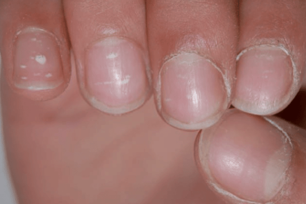 Nail Signs due to abnormal nail matrix function – ture leukonychia 真性白甲