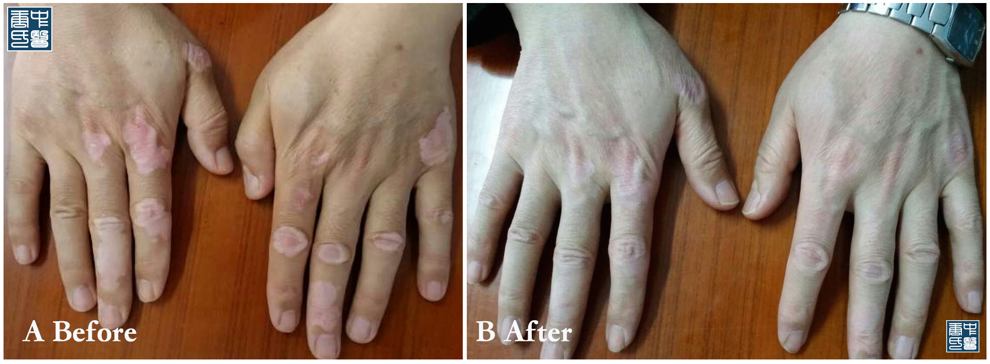 vitiligo a1