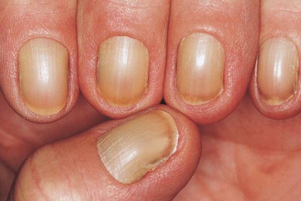 Nail Signs Yellow Nail Syndrome