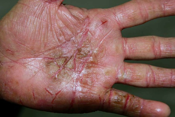 Occupational Associcated Hand Eczema 职业性手湿疹