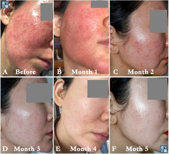 licorice dermatitis A3