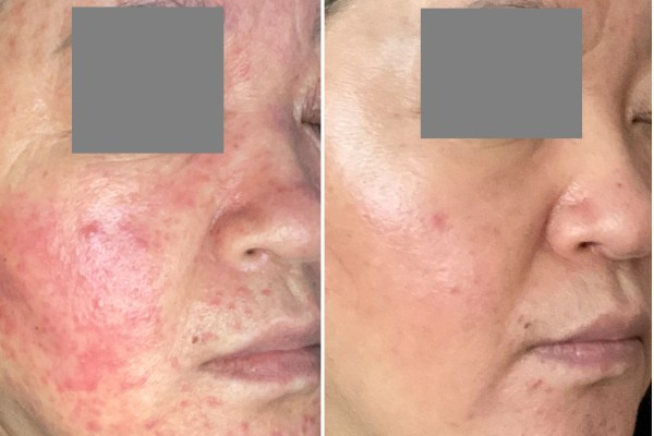Steroids Rosacea Overlaps Retinoid Dermatitis 激素性皮炎叠加维A酸皮炎