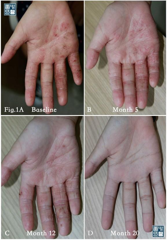eczema gene5.jpg