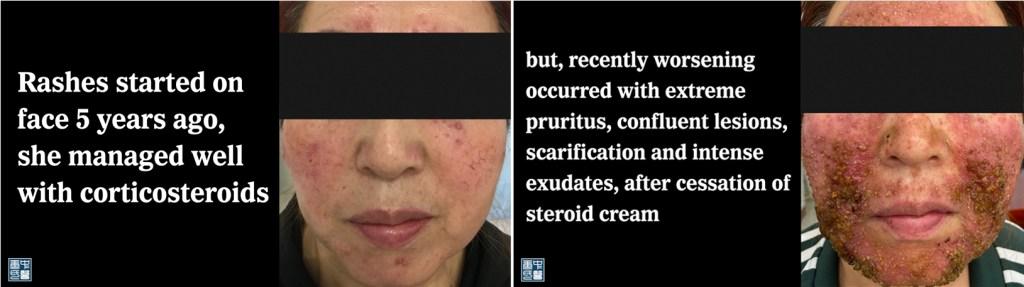 77 steroids dermatitis yue A