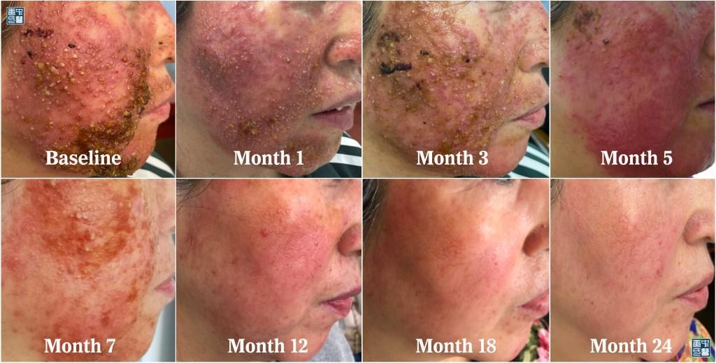 77 steroids dermatitis yue B2
