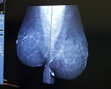 My breast image from the side