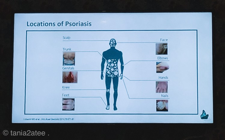 pictures-of-body-parts-effected-by-psoriasis