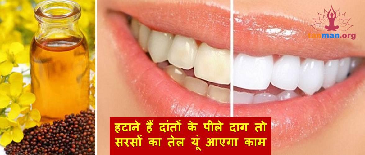 हटाने हैं दांतों के पीले दाग तो सरसों का तेल यूं आएगा काम