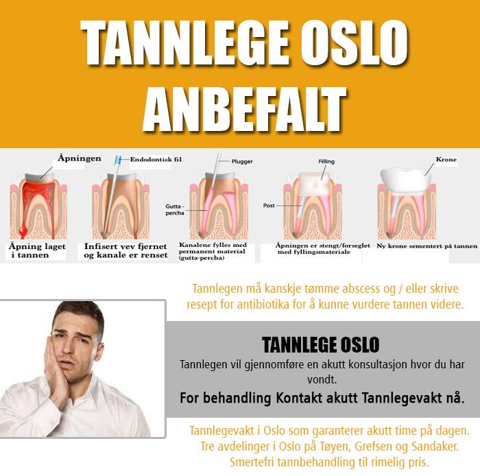 Tannlegevakt Oslo