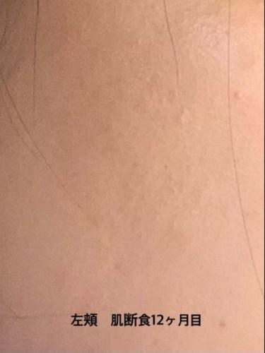 肌断食1年目の左頬の画像