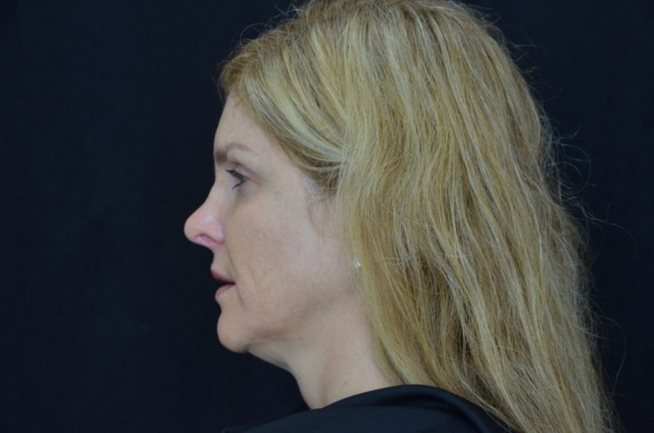 Kybella, before treatment, Dr. Lori Stetler, Dallas Center for Dermatology and Aesthetics, results