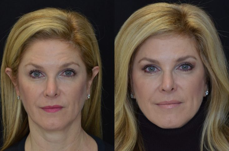Microblading with Dallas Center for Dermatology and Aesthetics