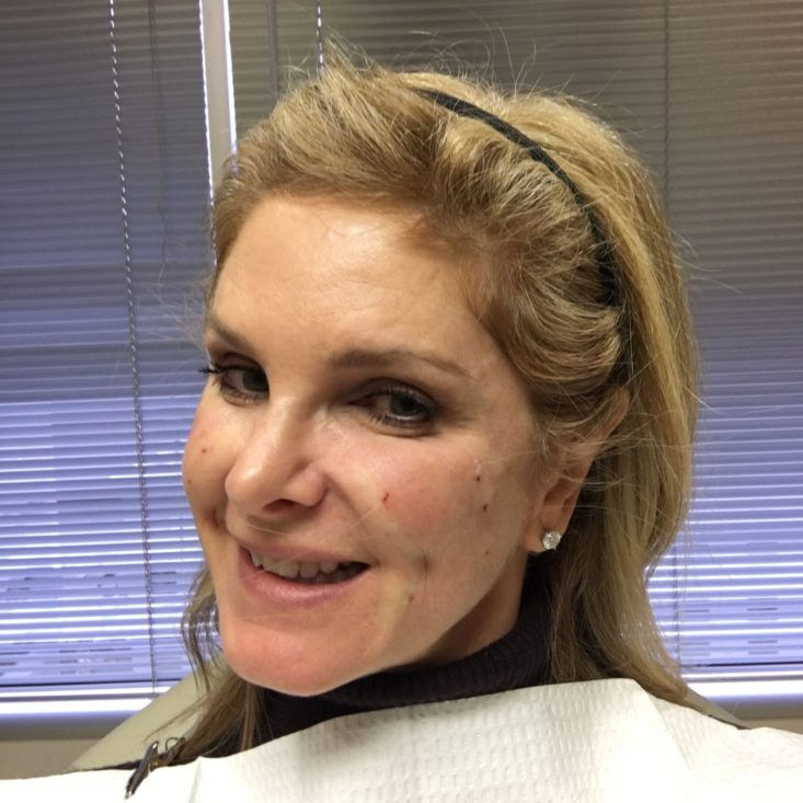 Instalift: The 45 minute Facelift | Tanya Foster | Dallas Lifestyle