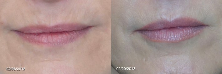 Using Vollure and Volbella to plump lips at Dallas Center for Dermatology and Aesthetics
