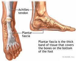 Picture of the achilles tendon wrapping around the calcaneus and blending into the plantar fascia. Plantar fasciitis.