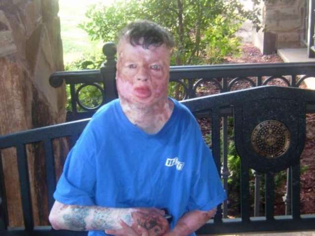 Robbie Middleton Tied To Tree & Set On Fire, Gets Justice On Deathbed