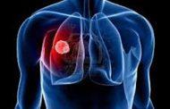 الأوكسجين قد يسبب سرطان الرئة