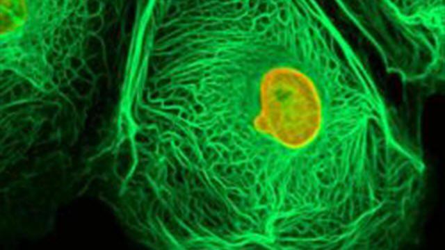 سرطان المثانة يستمر في حصد الأرواح