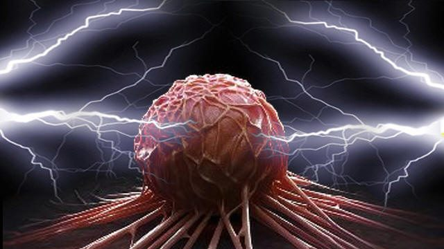 هل يمكن علاج السرطان بالتيار الكهربائي؟