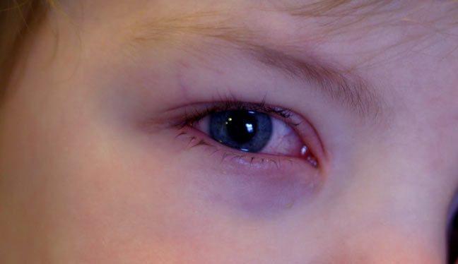 احمرار العين لدى طفلك دليل إصابته بالحساسية