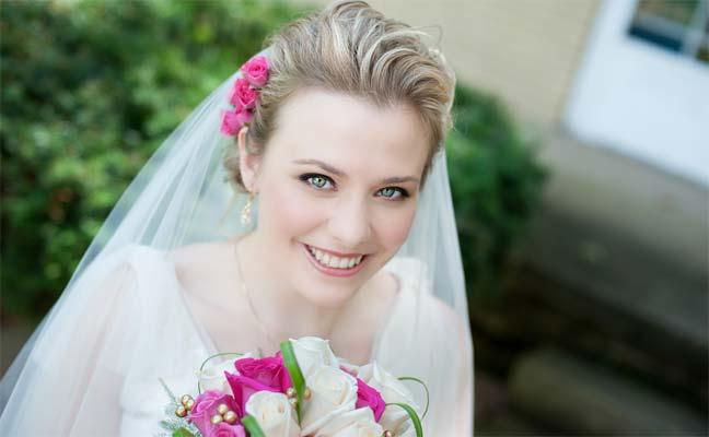 حول أكثر المشاكل الجمالية التي تقلق العروس