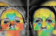 التصوير بالأبعاد الثلاثية للكشف عن تأثير حقن البوتوكس على الوجه