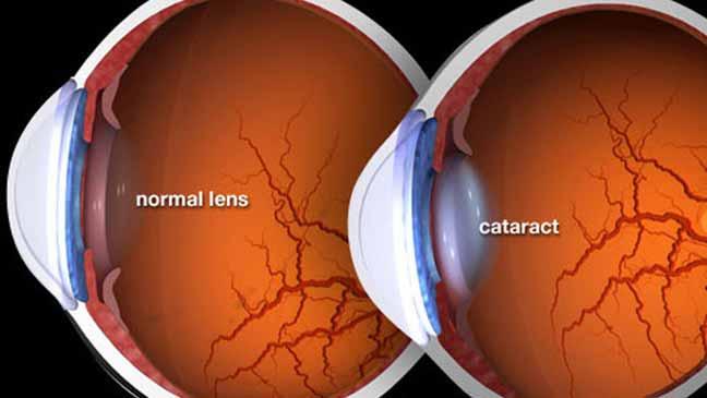 اكتشاف طريقة جديدة لعلاج إعتام عدسة العين
