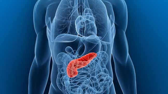 اختبار بسيط للبول يكشف عن سرطان البنكرياس